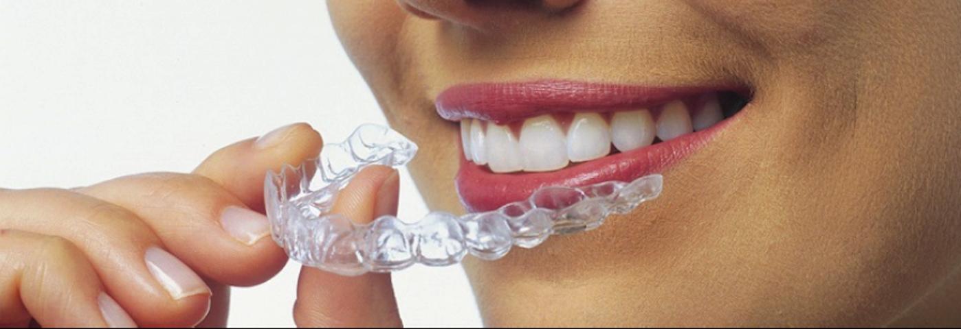 Centre de Santé Dentaire Valérie Khalil | Dentiste Granby
