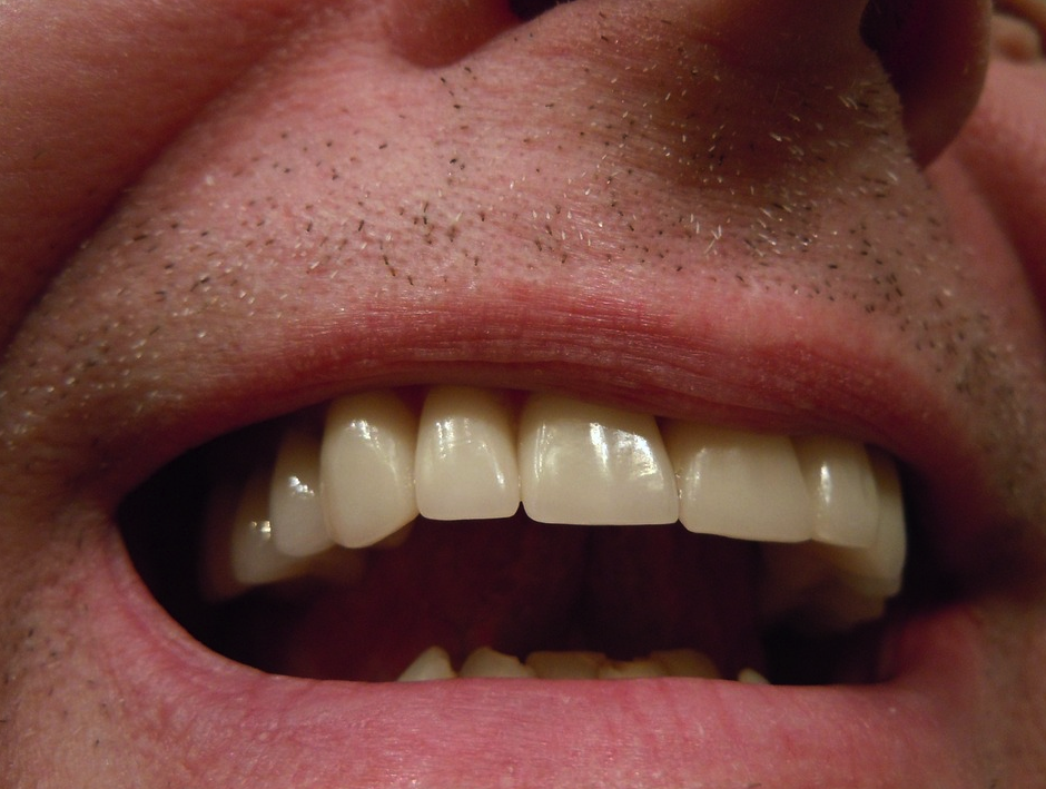 Denturologiste Jean Hébert, Gatineau