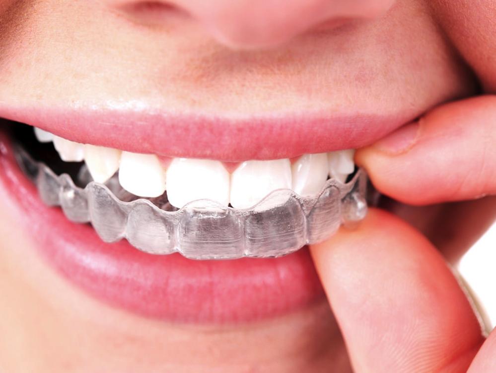 Clinique Dentaire de la Seigneurie Blainville (450)437-3338