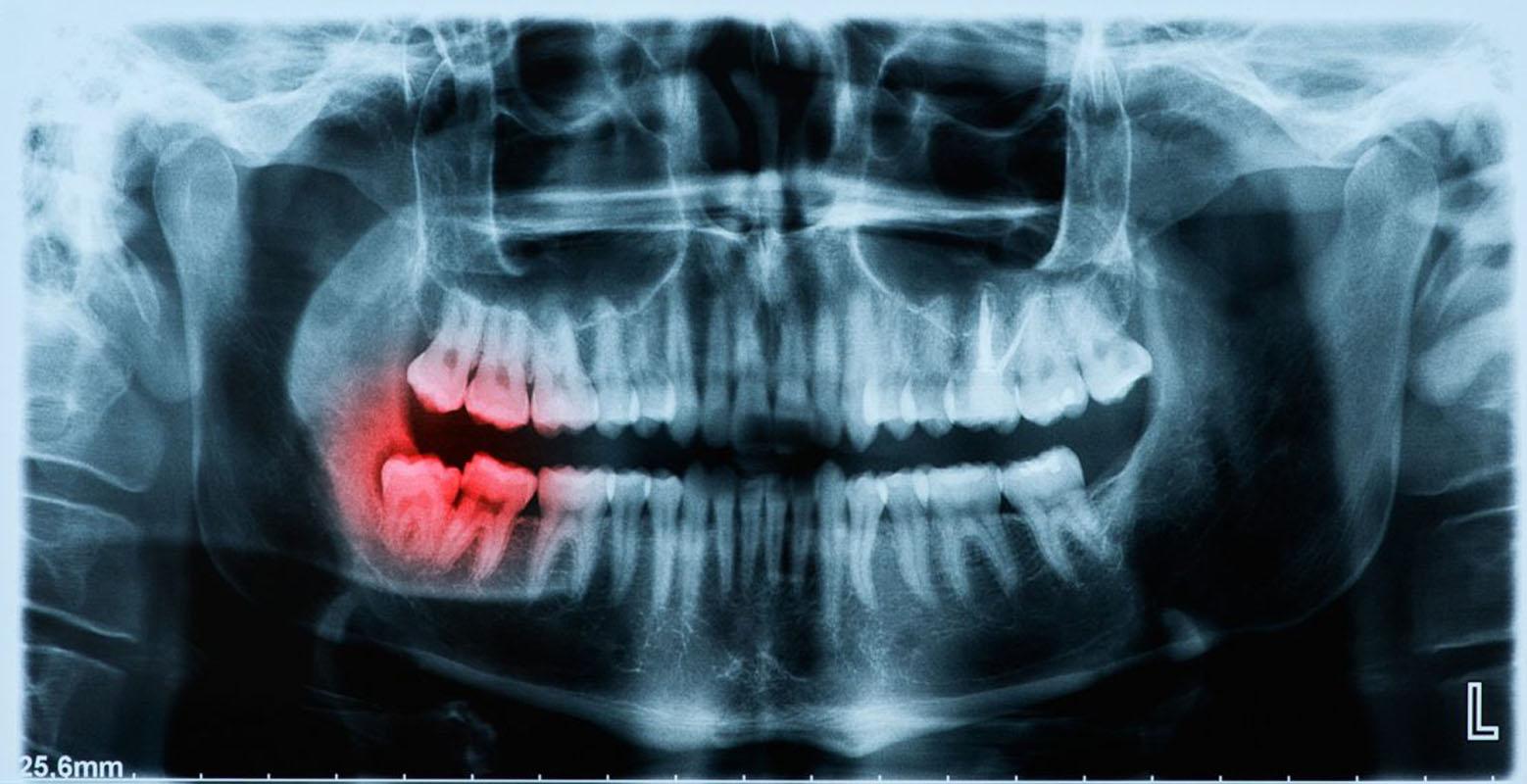 Summit Oral & Maxillofacial Surgery
