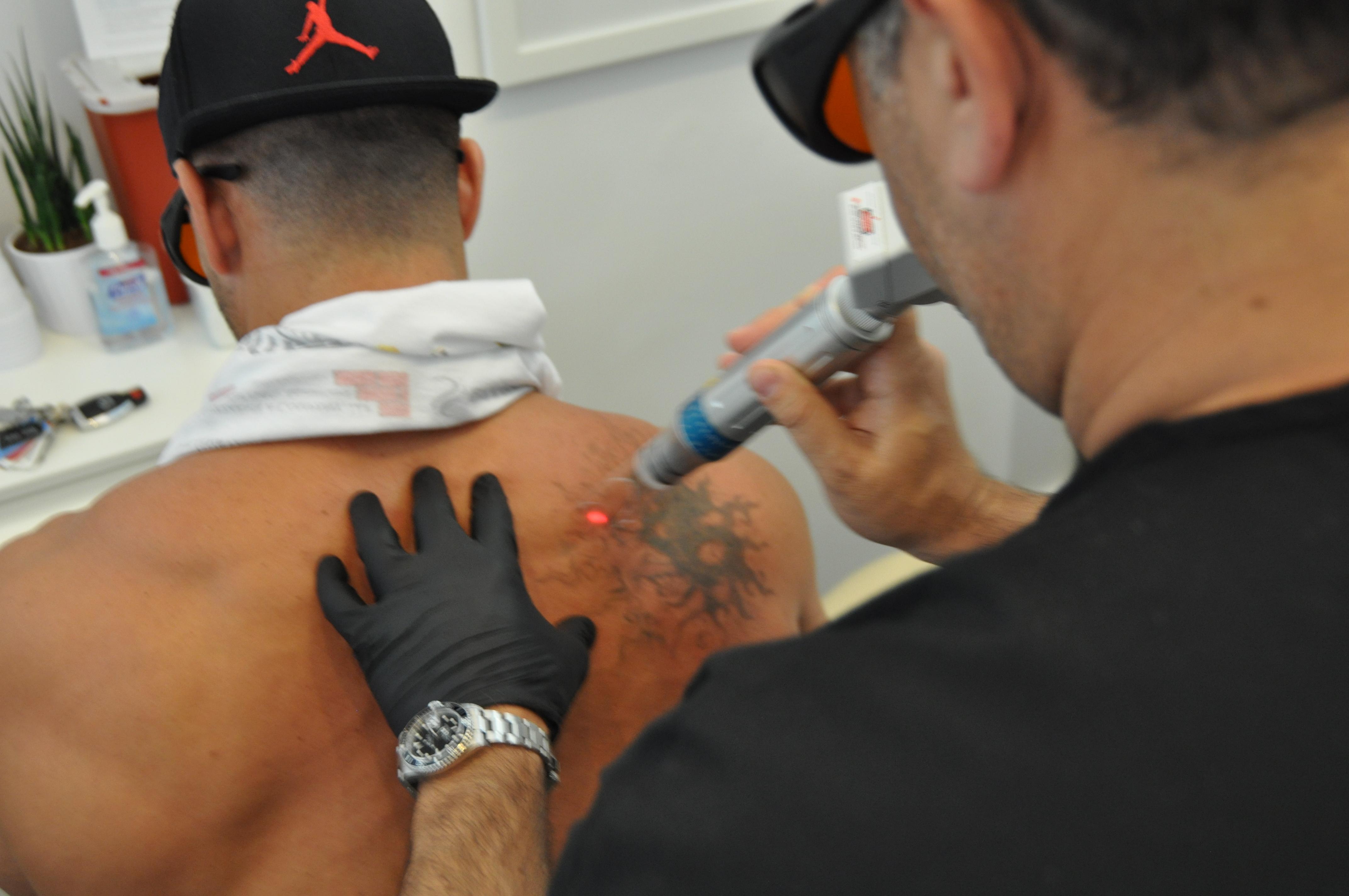 ReversaTatt Tattoo Removal