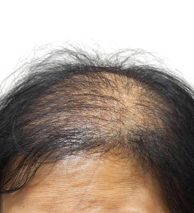 Rita Rose Hair (Specialists in Non-Surgical Hair Replacement for Hair Loss) Birmingham 07913 134144