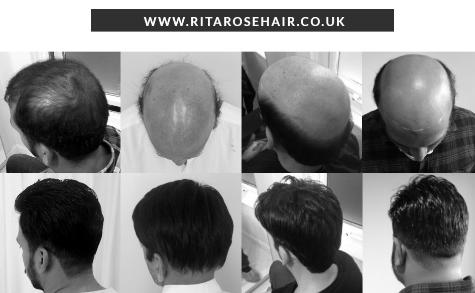 Rita Rose Hair (Specialists in Non-Surgical Hair Replacement for Hair Loss) - Birmingham, West Midlands B14 5HH - 07913 134144 | ShowMeLocal.com