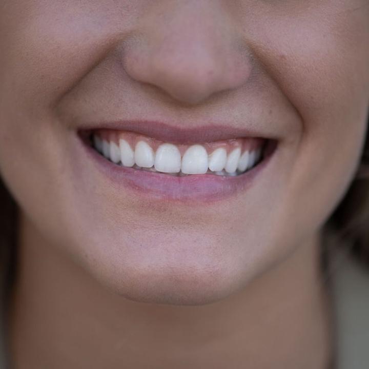 SayCheeese - Unsichtbare Zahnspangen aus Wien
