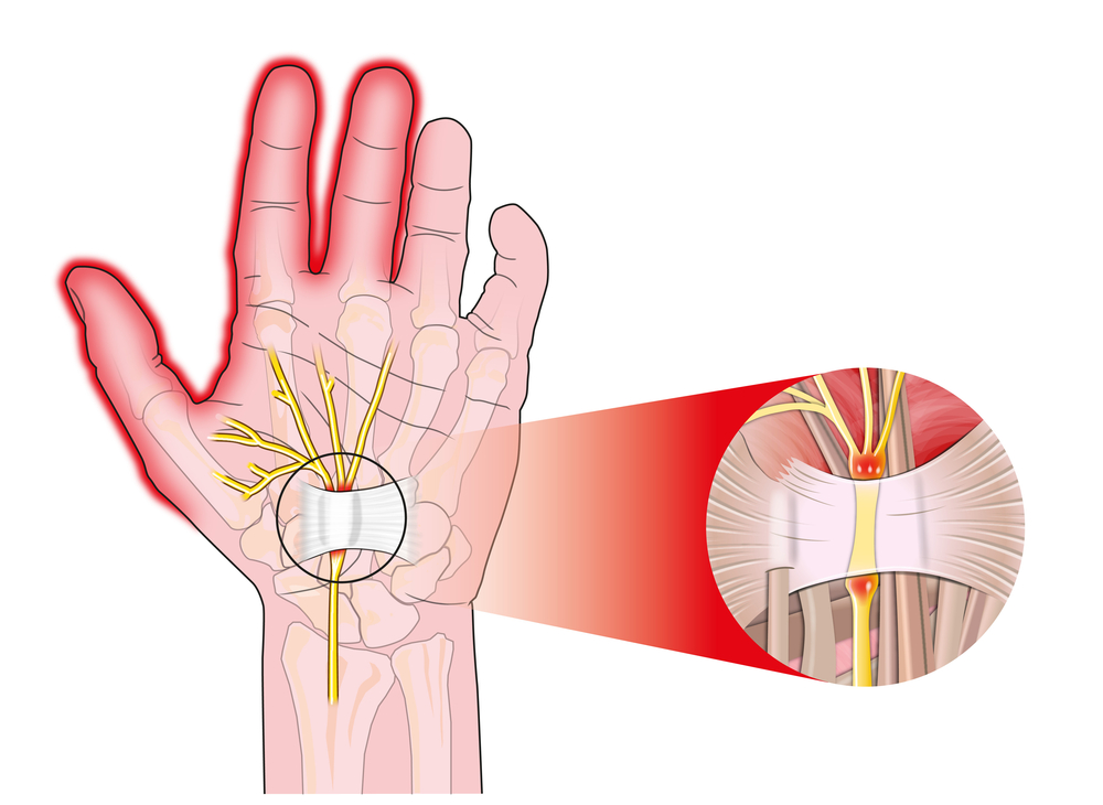 Chirurgie de la Main et de l'Épaule
