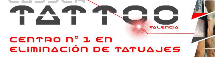 Lasser Tattoo Valencia