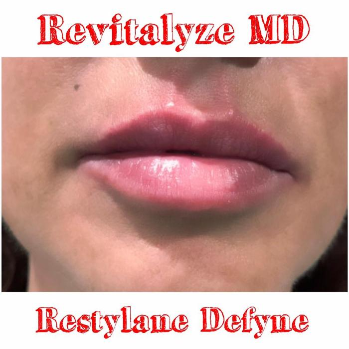 Revitalyze MD - Knoxville, TN