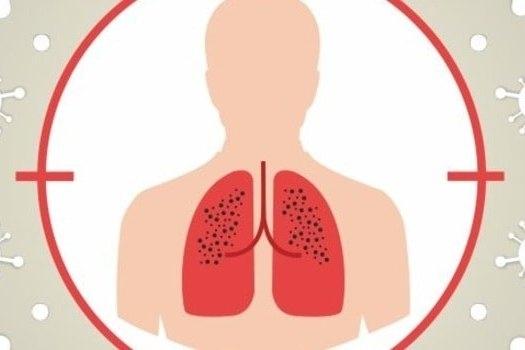 Чотирьом хворим на туберкульоз, яким уже не допомагали ніякі ліки, прислали препарати з Бельгії - condition