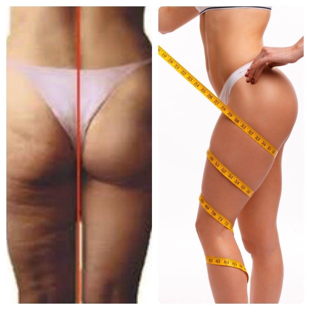 vibro masseur anti cellulite