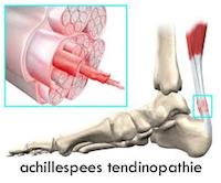 Achillespees Tendinopathie