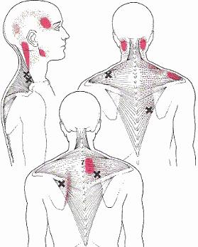 Nekklachten en hoofdpijn