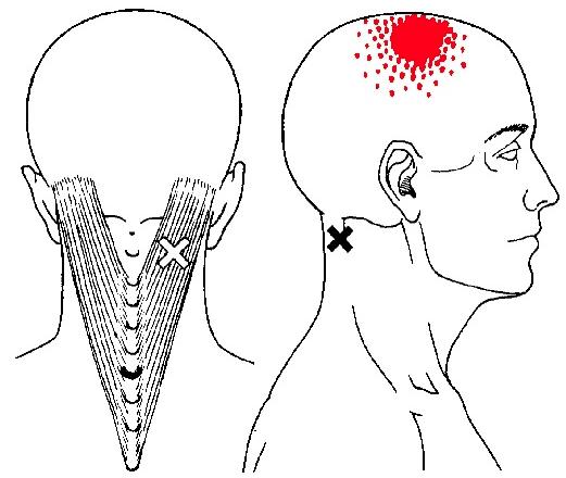 triggerpoint-splenius-capitis
