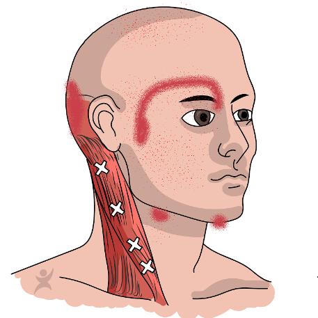 welke spieren kunnen Duizeligheid veroorzaken