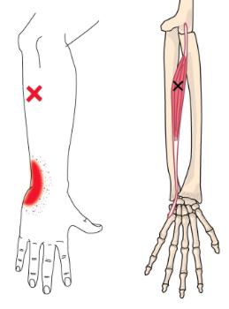 Extensor-Carpi-Radialis-Longus