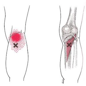 Dry needling vermindert pijnklachten achterzijde knie