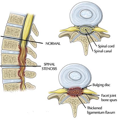 vernauwing spinaal kanaal lage rug