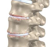 Artrose lage rug slijtage onderrug