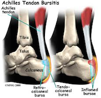 Achilles bursitis Slijmbeursontsteking hiel