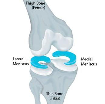 Meniscus van het kniegewricht