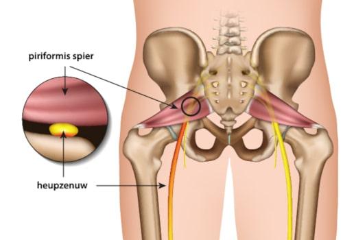 piriformis-syndroom-beknelling