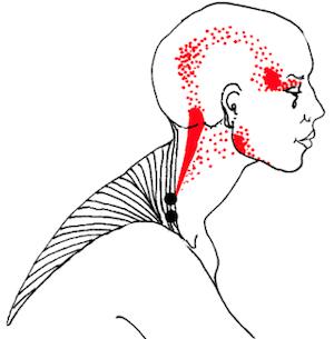 Triggerpoint therapie bij hoofdpijnklachten
