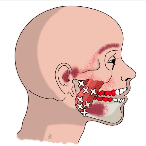 clusterhoofdpijn