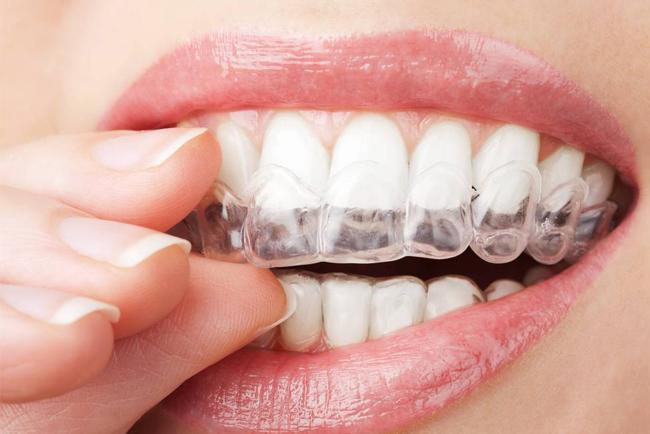 Denti perfetti