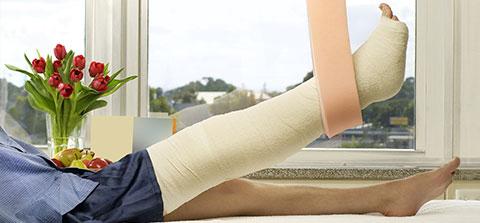 Patient mit gebrochenem Bein liegt im Krankenhausbett