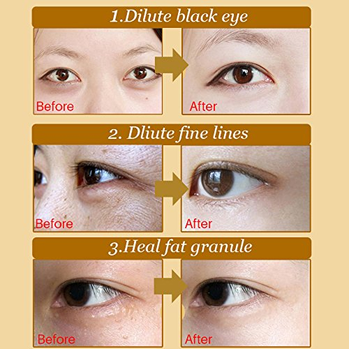Charmss Maschera per gli occhi, Collagene rilievi dell'occhio, D'oro Eye Mask Anti-rughe ed anti-età,Contorno occhi occhiaie,Ridurre borse, Occhiaie e puffiness cura occhi (60Pcs,oro). - 1